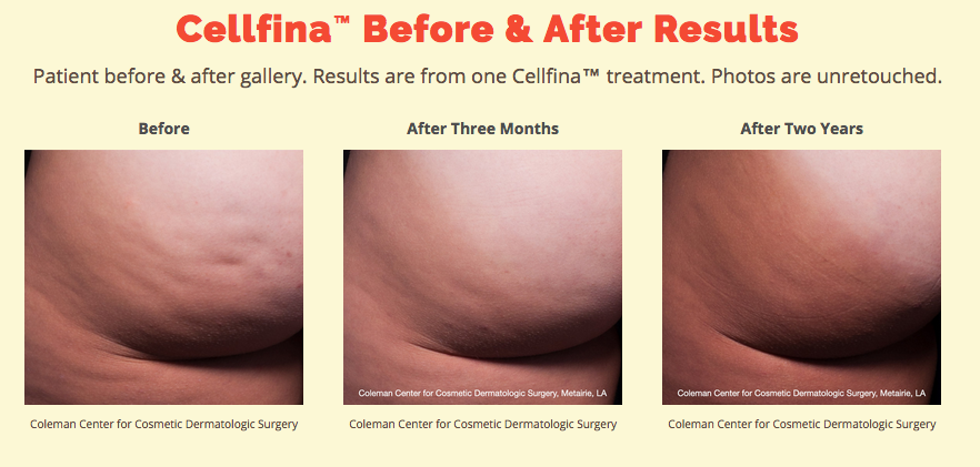 Before and After Cellfina